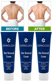Dermology hair removal for men