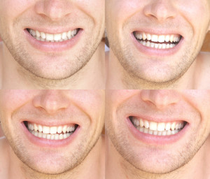 Idol White Teeth Whitening For Men