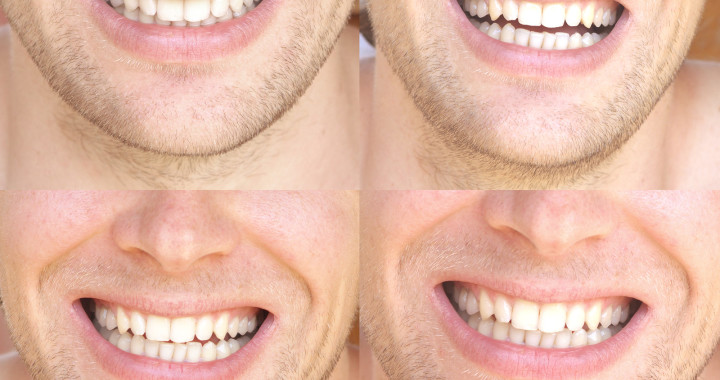 Teeth Whitening For Men