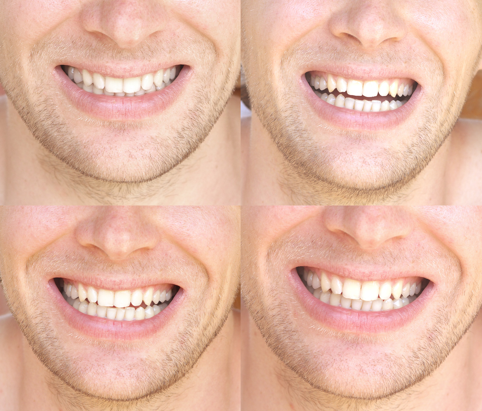 Teeth Whitening For Men From Idol White