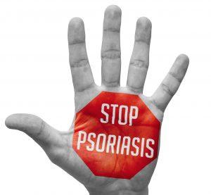 Lucent Skin Dermasis Psoriasis Cream For Men - Our Views