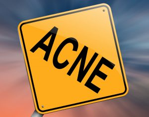 Is Lucent Skin Acnezine The Best Cure for Male Acne