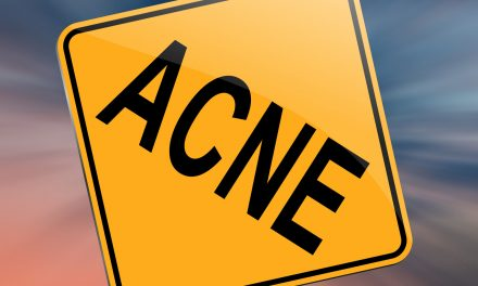 Is Lucent Skin Acnezine The Best Cure for Male Acne?