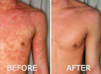 Lucent Skin Eczema Cream For Men