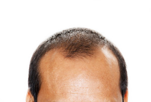 Profollica Solution For Hair Loss